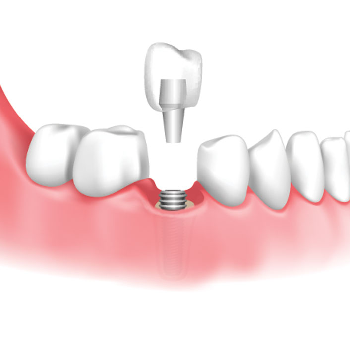Dental Implant Restoration - Dental Services