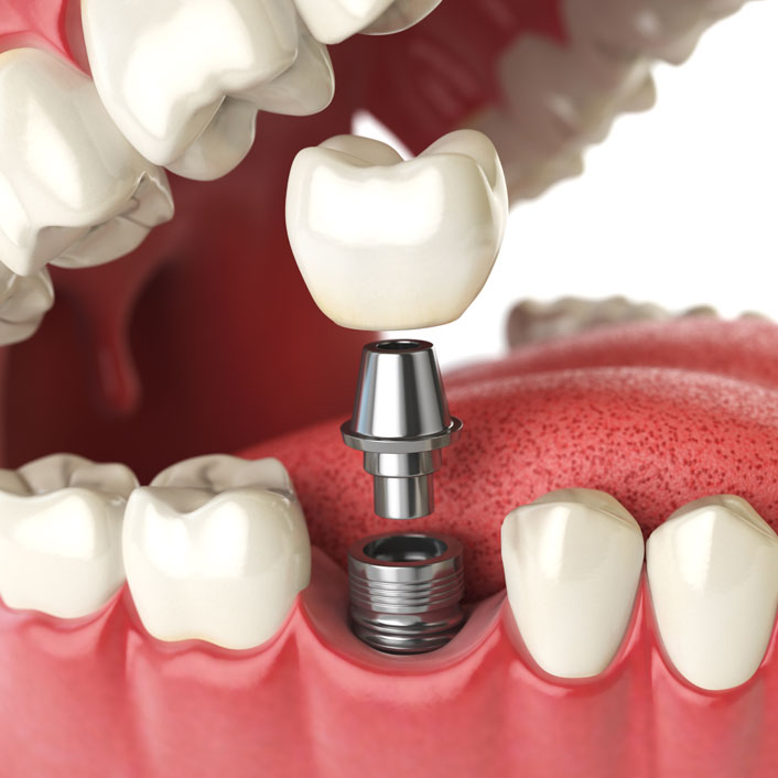 Implants - Dental Services